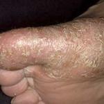 Псориаз на ладонях и подошвах: простой дискомфорт или серьезная болезнь? Фото, симптомы и лечение ла...