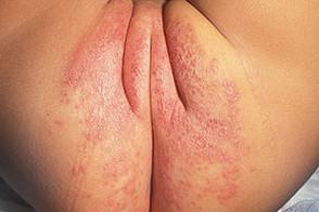 пеленочный дерматит легкая форма