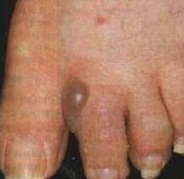 аллергический контактный дерматит фото