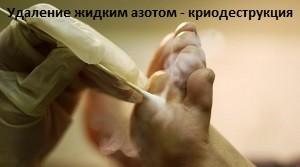 удаление подошвенных бородавок жидким азотом