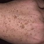Старческие бородавки – признак старости? Почему возникают старческие бородавки или возрастные керато...