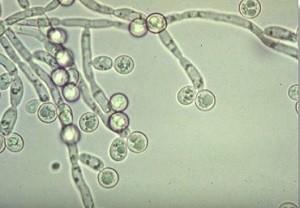 грибок кандида под микроскопом