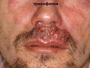 микоз кожи головы: трихофитон на лице