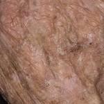 Какую кожную болезнь можно заметить не сразу? Кератоз кожи: причины, симптомы и методы лечения