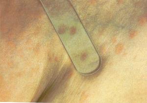 уртикарный васкулит фото