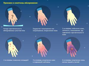 признаки и симптомы обморожения