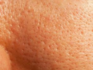ухаживать за жирной кожей