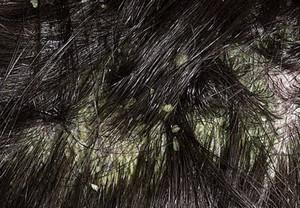 жирная себорея кожи головы фото