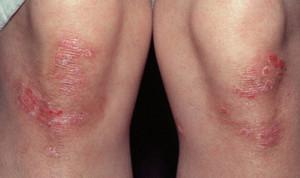 Заболевание кожи псориаз
