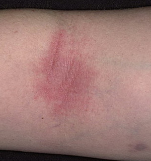 Ребенку 4 года атопический дерматит