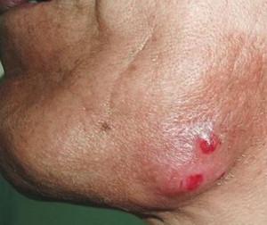 заболевание актиномикоз