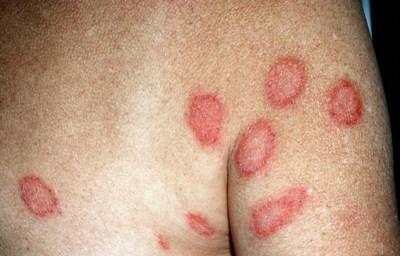 Микробная экзема: лечение, фото симптомов | СпросиДерматолога