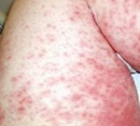 токсико-аллергический дерматит фото