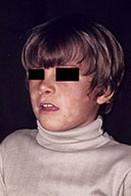 белый лишай у ребенка фото