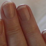 Псориаз ногтей пальцев рук и ног: косметический дефект или грозное заболевание? Как лечить псориаз н...