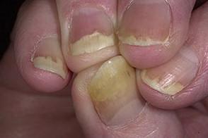 псориаз на ногтях ног фото