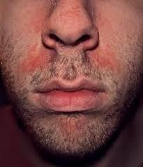 себорейный дерматит фото