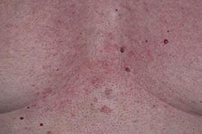 себорейный дерматит фото на теле