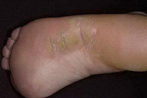 тилотическая экзема на ногах фото
