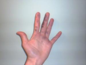 химический ожог нитратом серебра фото