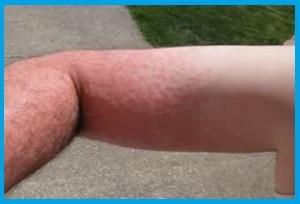 аллергический контактный дерматит фото на руке