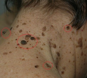 Вирус папилломы у мужчин симптомы