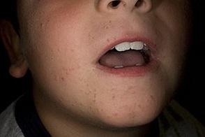 плоские бородавки фото у ребенка