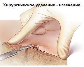 Лечение бородавок на лице мазями
