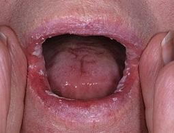 грибок во рту