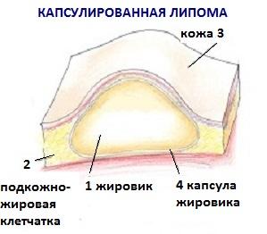 капсулированная липома