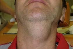 диффузная липома на шее