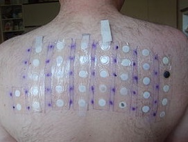 аллергический контактный дерматит аппликационные пробы