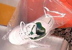 дезинфекция обуви при грибковых заболеваниях: уксус