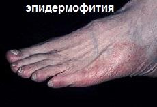 грибковые заболевания ног: эпидермофития