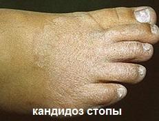 Грибковые заболевания ног: кандидоз стопы