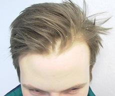 как выглядит перхоть на голове