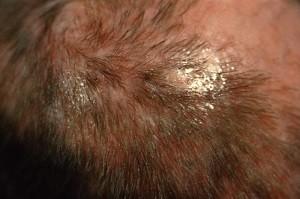 микоз кожи головы фото