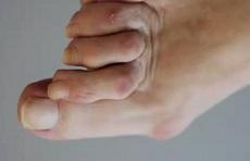 фото натоптышей на ступне при деформации пальцев