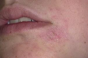 фото аллергической экземы