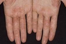 фото аллергической экземы на руках