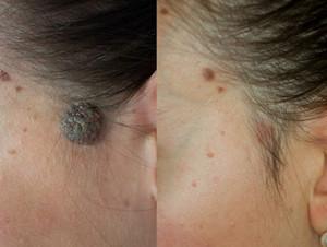 невус кожи лечение