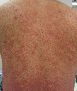 аллергический васкулит