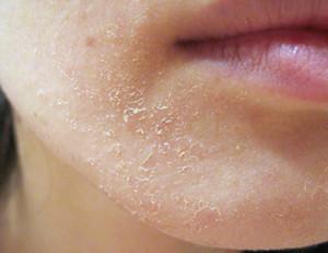 Сухая кожа на лице как избавиться