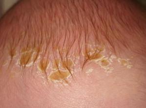 себорея кожи головы симптомы