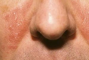 Чем лечить себорею на лице