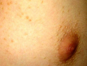 лечение себорейных кист