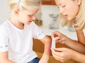 ожог кипятком у ребенка лечение