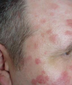 чем лечить псориаз на лице