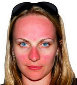 солнечный ожог кожи лица