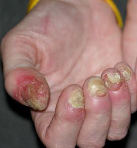 foto-artropaticheskogo-psoriaza